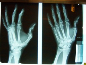 May or not be Chism's actual x-ray. . .